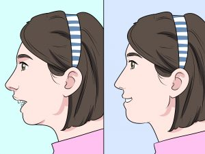 How Difficult Is Overbite Correction for Adults